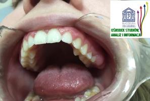 Dentystów portret własny: coraz wyższe wymagania wobec funkcjonujących w biznesie
