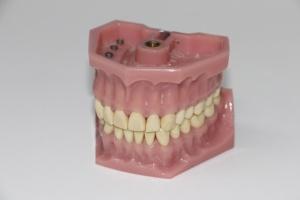 Protezy dentystyczne wzbogacone lekiem