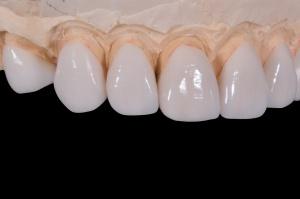 Czy technicy dentystyczni mogą liczyć na zatrudnienie?