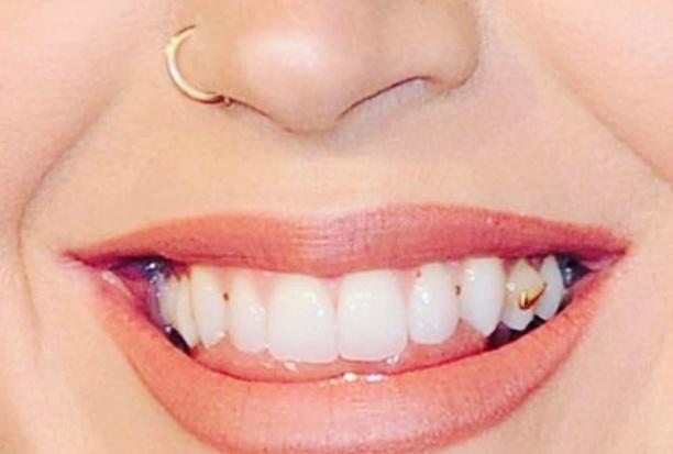 Katy Perry: zęby nie zawsze perfekcyjne
