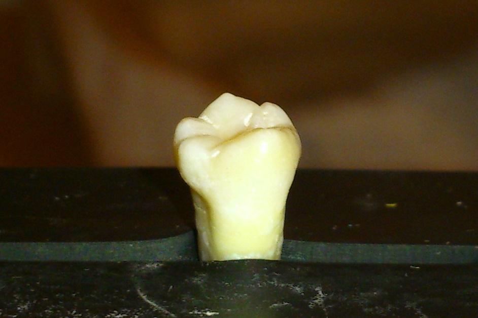 Eksperyment będzie prowadzony na naturalnych zdrowych zębach, pozyskanych od pacjentów Uniwersyteckiej Kliniki Stomatologicznej.