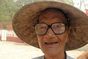 Kolejne dowody na związek braku zębów z demencją