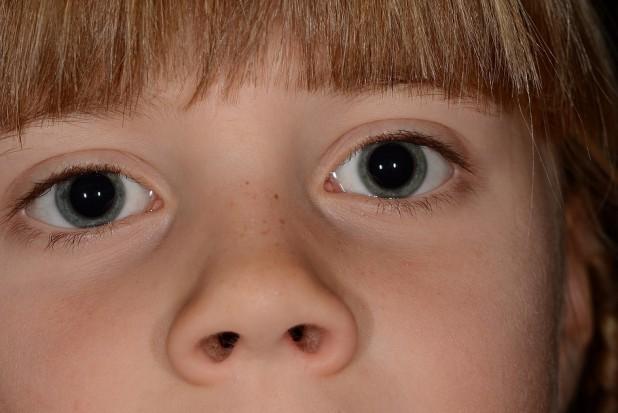 Bez NFZ dbają o zdrowie jamy ustnej dzieci