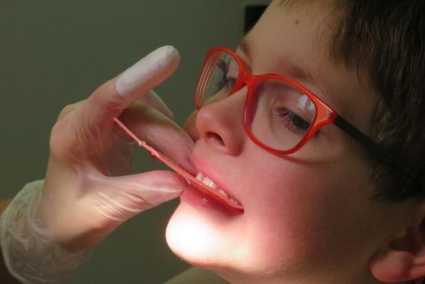 Ministerstwo Zdrowia zwiększa koszyk świadczeń gwarantowanych w zakresie leczenia stomatologicznego