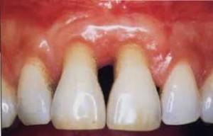 Leczenie periodontologiczne poprawia stan pacjentów ze współistniejącymi chorobami kardiologicznymi i cukrzycą