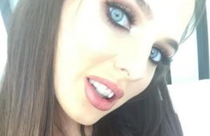 Helen Flanagan u ortodonty