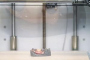 Arfona szybko wydrukuje dobrą i tanią protezę częściową
