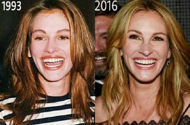 Julia Roberts prowadzi w rankingu celebrytów na najładniejszy uśmiech