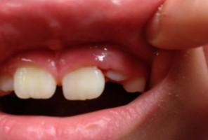 Będą koordynatorzy ds. opieki stomatologicznej dzieci i młodzieży?