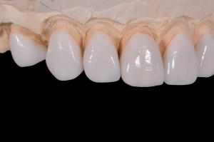 Polska to dobry kraj dla dentystów?