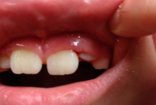 Płock: konkurs NFZ uniemożliwia powrót dentystów do szkół!