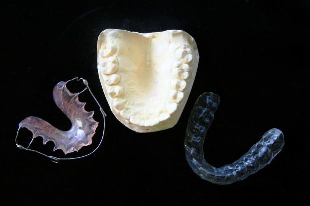 Stres? Bezpieczniej zaopatrzyć się w ochraniacze na zęby