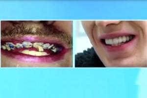 Gość, który nie mył zębów przez całe życie