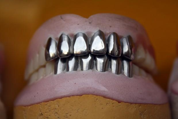 Nastolatki ze wskazaniami do protezowania zębów