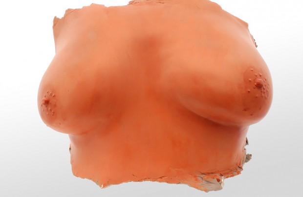 Chirurg szczękowy nie powinien powiększać piersi pacjentkom