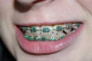 Drut ortodontyczny w jelicie pacjentki
