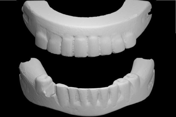 Zeskanowano zęby George'a Washingtona