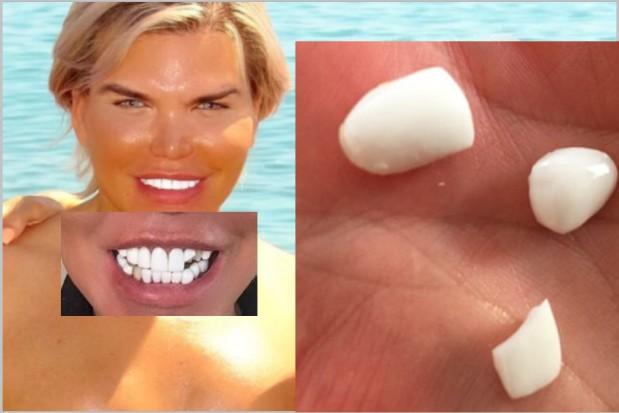 Rodrigo Alves miał za ładne zęby