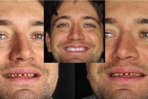 Rozszerzona rzeczywistość na usługach pacjentów rekonstruujących zęby