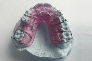 Ortodonto - leczysz dziecko? Przyjrzyj się rodzicom!