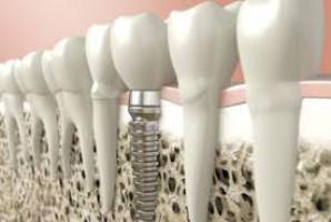 Jak nie tytanowy implant to jaki?