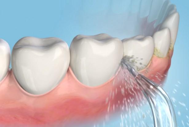 Wodna nić stomatologiczna wciąż jest cool
