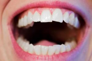 Nadmierne wybielanie zębów prowadzi do choroby ogólnoustrojowej?