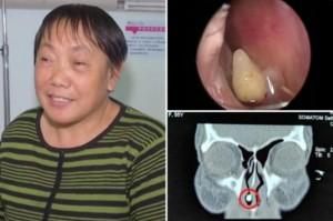 Są tacy co mają zęby w nosie… literalnie
