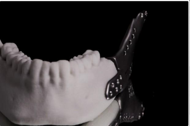 GUMed: drukarka 3D wspomaga rekonstrukcję żuchwy