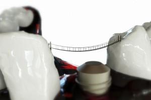 Duże komplikacje po wszczepieniu implantów, ale bez winy dentystki