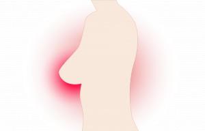 Rak piersi: kolejny trop w kierunku  jamy ustnej