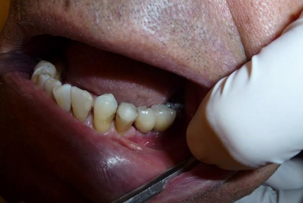 Wzrasta koszyk gwarantowanych usług stomatologicznych
