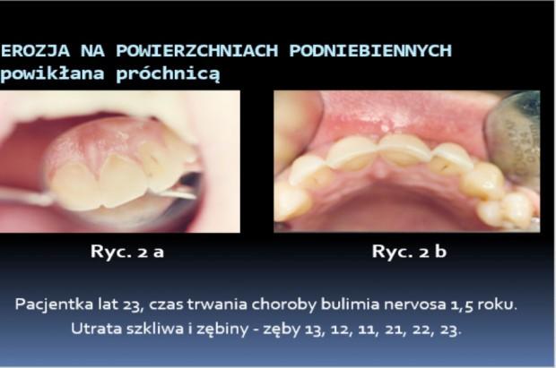 Przychodzi anorektyczka do dentysty