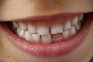 Co mówić pacjentom o wyrzynaniu się zębów