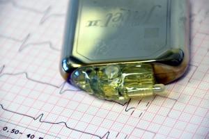 Pacjent z rozrusznikiem serca bezpieczny u dentysty