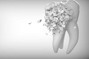 GUS: trendy w stomatologii