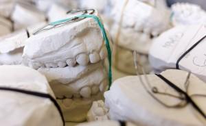 Ekspert: ministerialna wizja zawodu technika dentystycznego, z gruntu chybiona