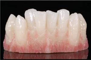 UMB: nauka protetyki stomatologicznej w Zirkonzahn