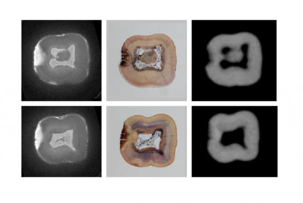 Naukowcy: diagnostyka rezonansu magnetycznego u pacjentów ortodontycznych