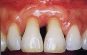 Europejska Federacja Periodontologiczna walczy z chorobami przyzębia i próchnicą