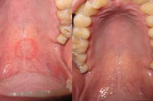 Seks oralny doprowadził do zmian w podniebieniu pacjenta