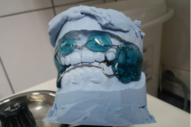 Praca protetyczna na zamówienie, a przepis lekarza dentysty