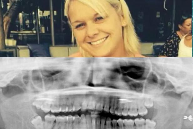 Kobieta oszpecona, bo dentysta poślizgnął się przy ekstrakcji zęba
