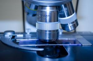Dofinansowanie na walkę z paradontozą