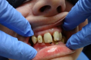 Komercyjne usługi stomatologiczne rosną w siłę
