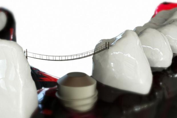 Implanty częścią kompleksowego leczenia pacjenta