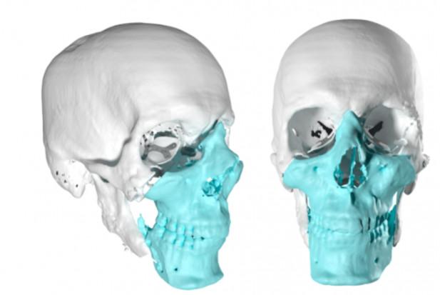 Nauka wyciąga rękę w stronę chirurgii szczękowo – twarzowej