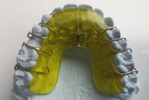 RCS w Toruniu wymaga skierowań do ortodonty