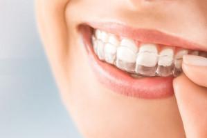 Polacy, kupujcie aparaty ortodontyczne przez internet!