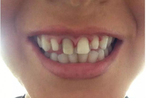 Królowa piękności dostała 30 tys. funtów za źle leczone zęby